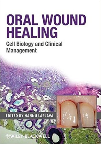 Oral Wound Healing: Cell Biology and Clinical Management 1st Edition