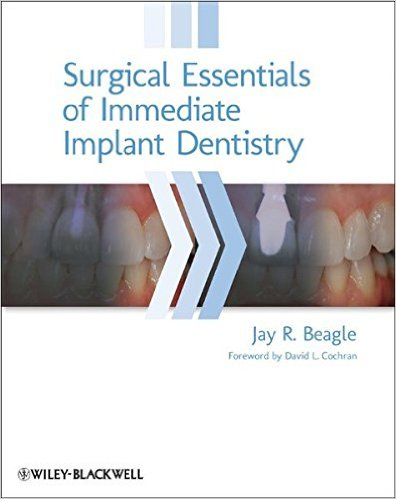 Surgical Essentials of Immediate Implant Dentistry 1st Edition