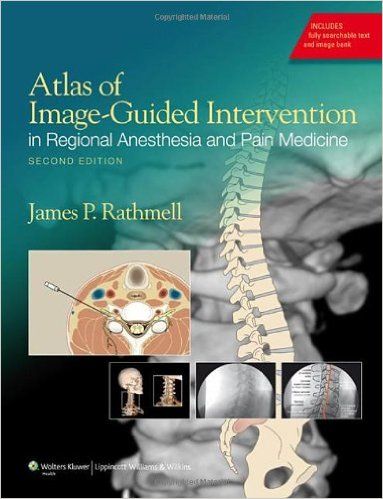Atlas of Image-Guided Intervention in Regional Anesthesia and Pain Medicine Second Edition