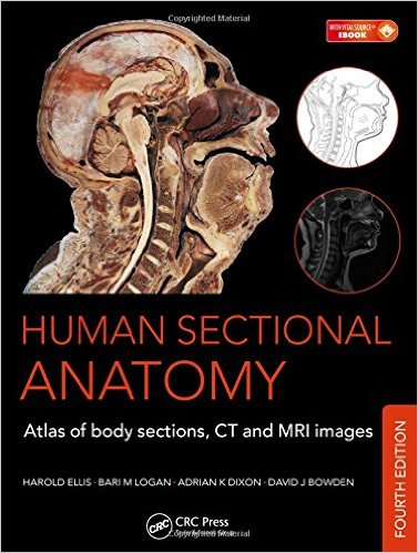 Human Sectional Anatomy: Atlas of Body Sections, CT and MRI Images, Fourth Edition 4th Edition