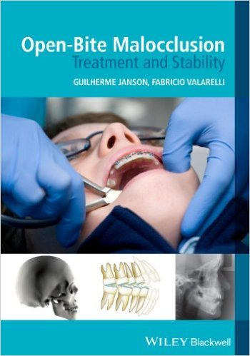 Open-Bite Malocclusion: Treatment and Stability 1st Edition