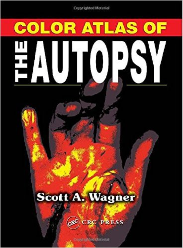 Color Atlas of the Autopsy 1st Edition