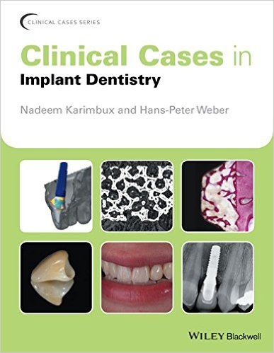 Clinical Cases in Implant Dentistry (Clinical Cases (Dentistry))
