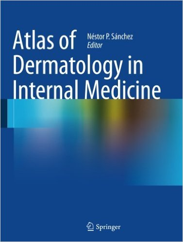 Atlas of Dermatology in Internal Medicine 2012th Edition