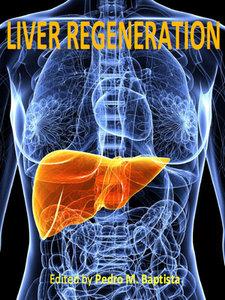 "Liver Regeneration"" ed. by Pedro M. Baptista"