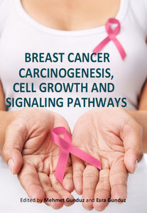 Breast Cancer: Carcinogenesis, Cell Growth and Signalling Pathways