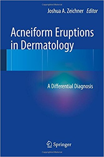 Acneiform Eruptions in Dermatology: A Differential Diagnosis 2014th Edition