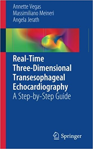 Real-Time Three-Dimensional Transesophageal Echocardiography: A Step-by-Step Guide 2012th Edition