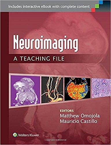 Neuroimaging: A Teaching File (LWW Teaching File Series) First Edition