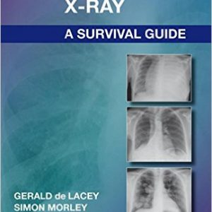The Chest X-Ray: A Survival Guide, 1e 1st Edition