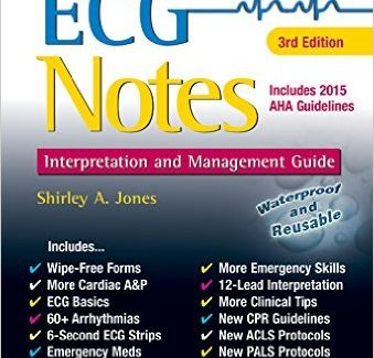 ECG Notes: Interpretation and Management Guide 3rd Edition