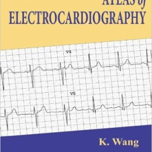 Atlas of Electrocardiography 1st Edition