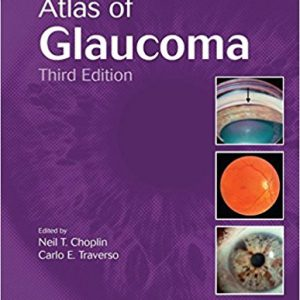 Atlas of Glaucoma, Third Edition 3rd Edition