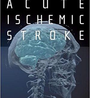 Acute Ischemic Stroke: An Evidence-based Approach 1st Edition