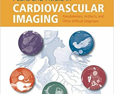 Pearls and Pitfalls in Cardiovascular Imaging: Pseudolesions, Artifacts, and Other Difficult Diagnoses 1st Edition