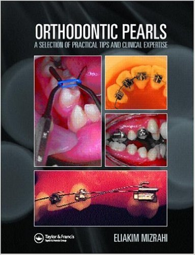 Orthodontic Pearls: A Selection of Practical Tips and Clinical Expertise 1st Edition