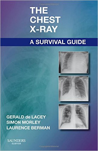 the chest x ray a survival guide 1e 1st edition emedical books rh emedicalbooks com chest x ray survival guide pdf free download chest x ray survival guide download