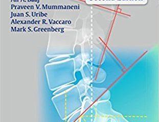 Handbook of Spine Surgery 2nd Edition